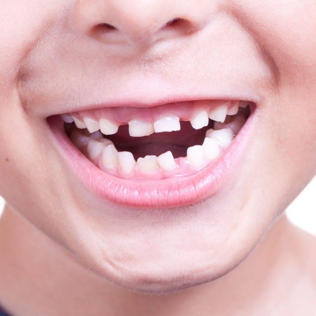 Dinții de lapte